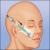 Endotine_midface_ilustrace_2.jpg