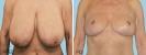 zmenseni-prsou-redukce_3-1.jpg